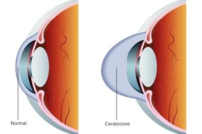 Tratamento do ceratocone: Cross-Linking do Colágeno